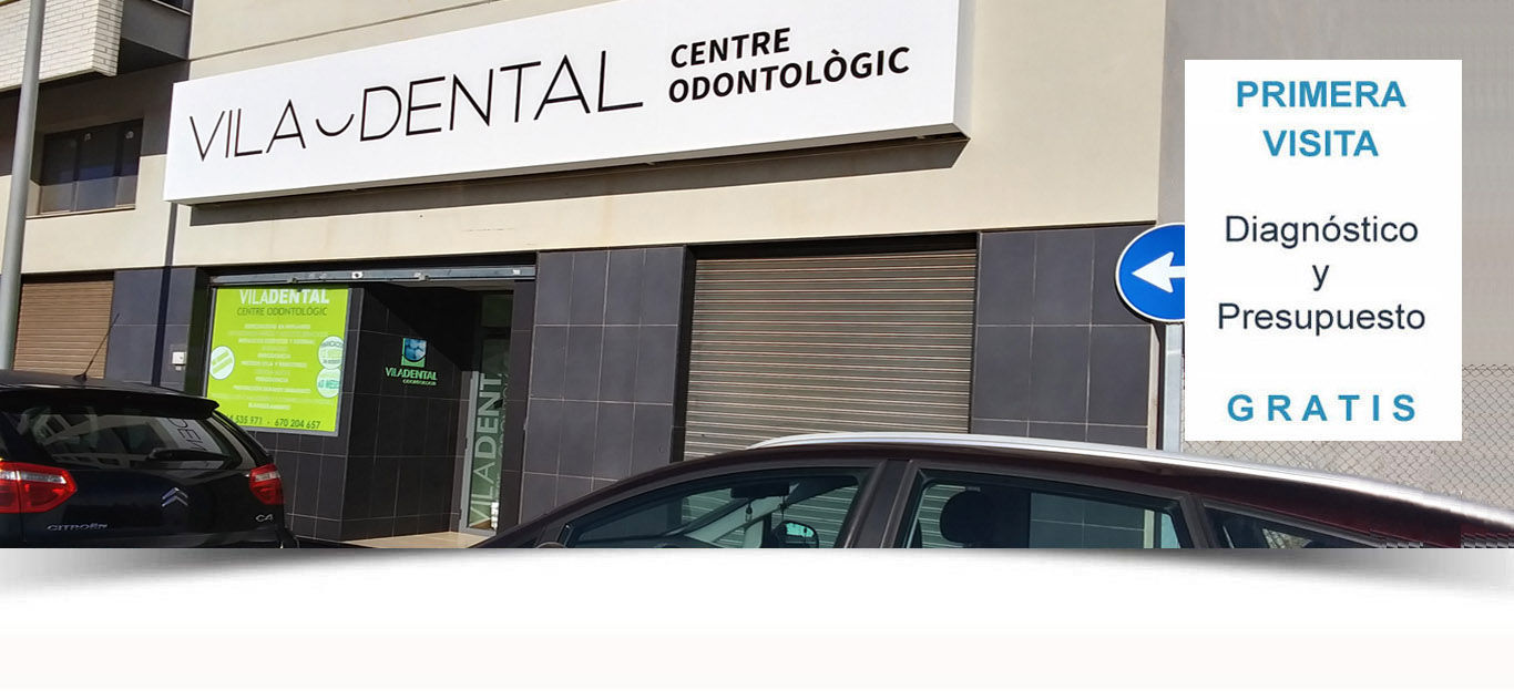 implantologia dental en vila-real
